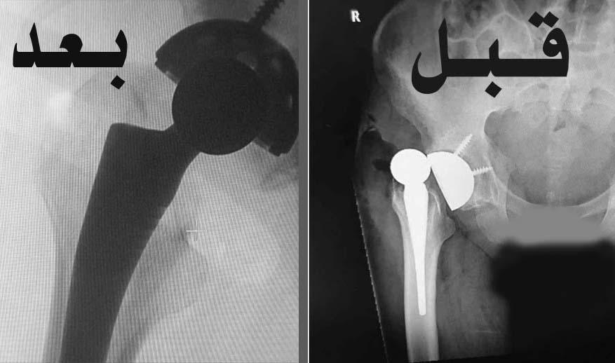 جراحة ناجحة بمستشفى بريدة المركزي لتركيب مفصل صناعي تنهي معاناة مريض