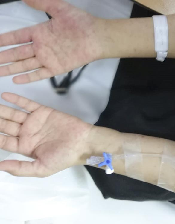 تعاني من طفح جلدي شديد في جسمها .. أطباء مركزي بريدة ينجحون في معالجة فتاة من متلازمة ستيفن جونسون