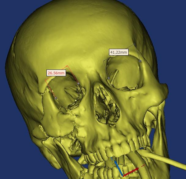 باستخدام تقنية ثلاثية الأبعاد.. جراحة دقيقة بمركزي بريدة تنجح بإعادة تثبيت كسر في عظام الوجنة والرأس والفك السفلي