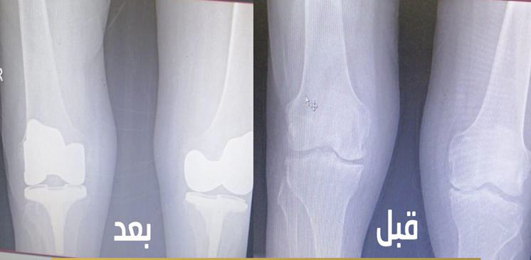 تعتبر الأولى من نوعها ،، مركزي بريدة ينجح في استبدال مفصلي ركبة بجلسة واحدة لمريض يعاني من خشونة متقدمة