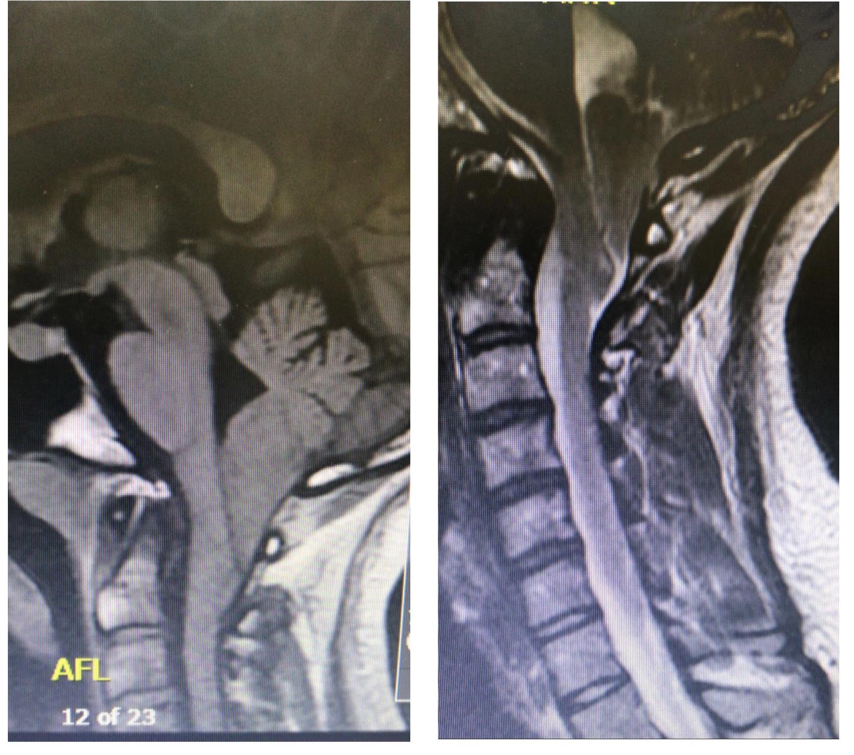 مريضة تستعيد النطق وتوازن المشي بعد تدخل جراحي بمستشفى بريدة المركزي