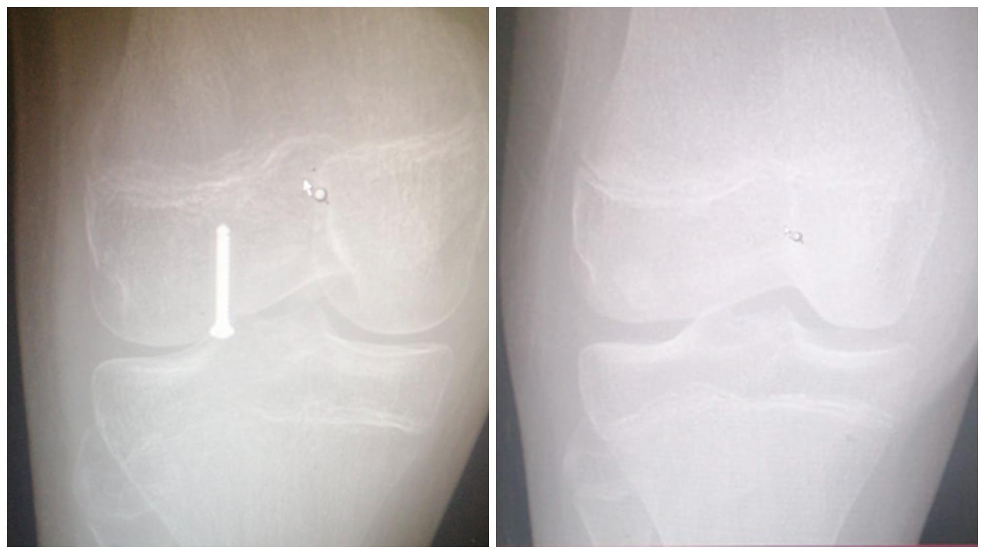 نجاح عملية تثبيت كسر في الركبة بواسطة المنظار الجراحي بمستشفى بريدة المركزي
